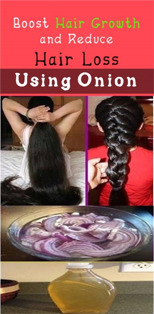 Boost Hair Growth and Reduce Hair Loss Using Onion