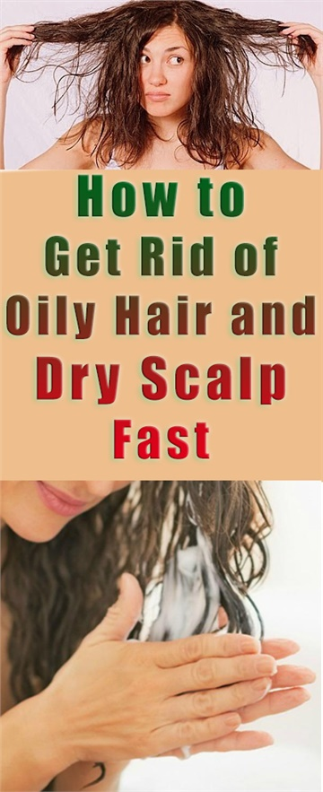 How to Get Rid of Oily Hair and Dry Scalp Fast with Home Remedies