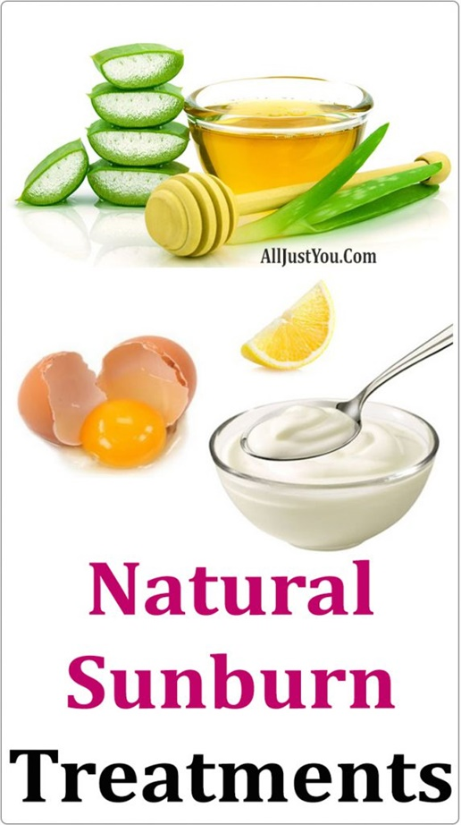 Sunburn Relief Remedies – Over 50 Soothing Treatments