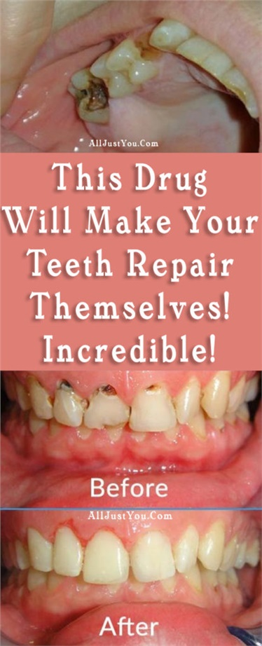 THIS DRUG WILL MAKE YOUR TEETH REPAIR THEMSELVES! INCREDIBLE!